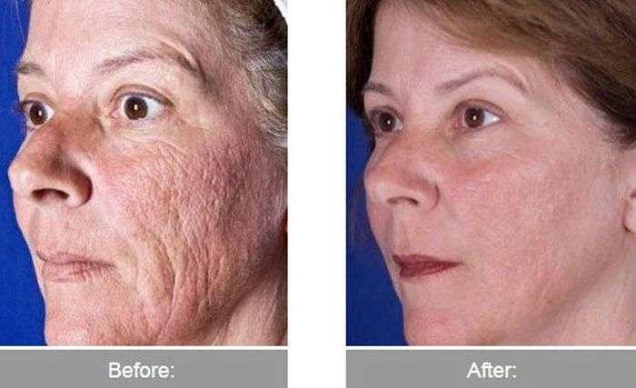 До і після трансформації (40 фото)